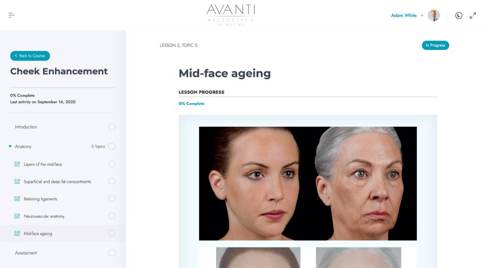Mid-face ageing – Avanti Aesthetics Academy - avantiaestheticsacademy